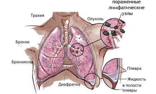 фото метастазы в легких