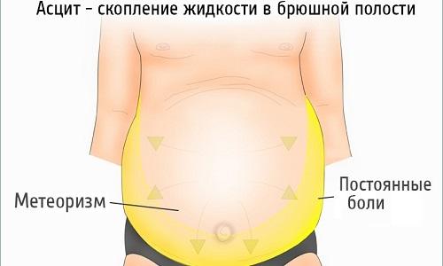 Асцит брюшной полости лечение народными средствами