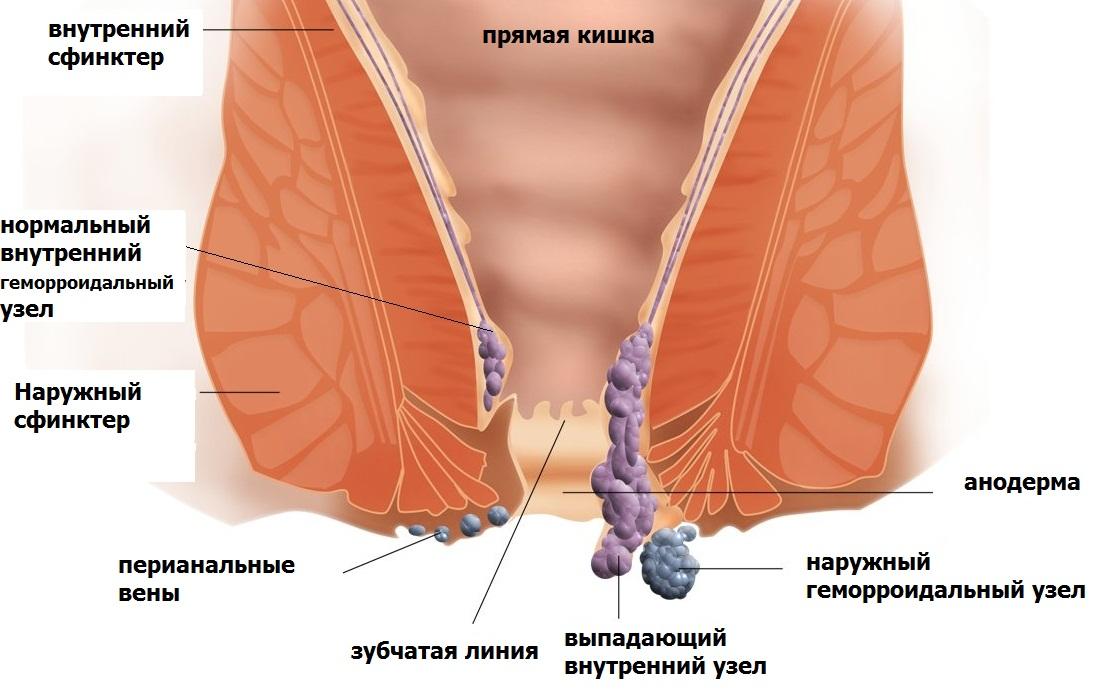 Болезни анала