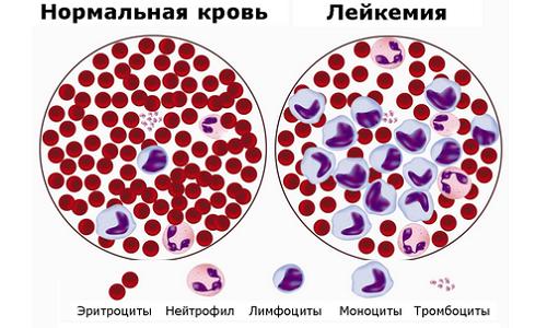 Состав крови в норме и при лейкозе