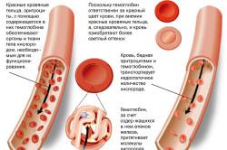 Анемия - признак пониженного гемоглобина