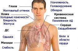 Анемия - противопоказание к лучевой терапии