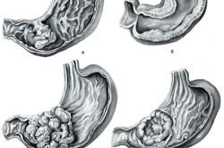 Формы рака желудка