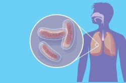 Туберкулез - противопоказание к лучевой терапии